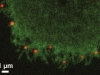 Confocal pictures